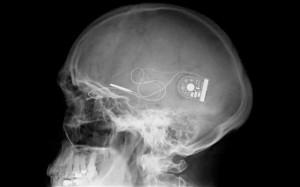 Implante que permite a ciegos ver