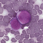 Células de leucemia