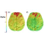 Brain hiperactividad